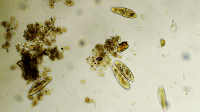 groupe of paramecium caudatums - protozoan stock videos and b-roll footage