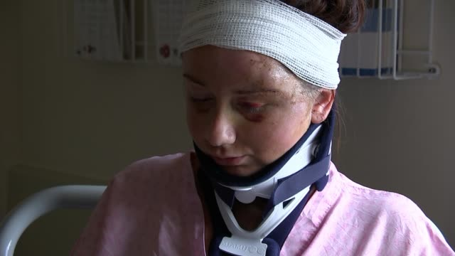vídeos de stock, filmes e b-roll de gymnast injured in hit and run appeals for witnesses england london int aaron huie interview sot on her injuries sarah bermingham with neck brace and... - brace