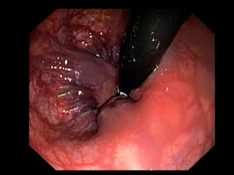 Haemorrhoids. Endoscopic view of haemorrhoids in a patient s rectum..