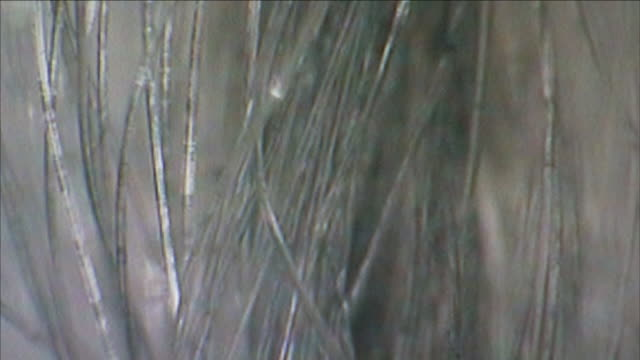 hair appears almost translucent under a microscope. - 法科学点の映像素材/bロール