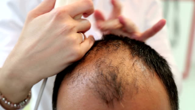 hair loss treatment - balding stock videos & royalty-free footage