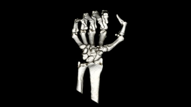 hand ct - anatomy stock videos & royalty-free footage