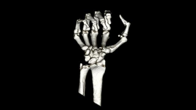 Hand CT