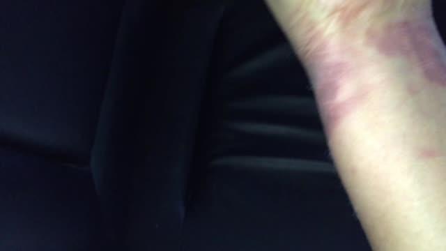 手の皮の焼跡 - 傷点の映像素材/bロール