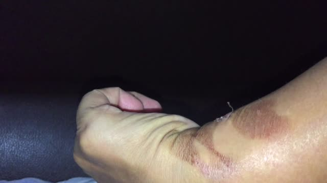 hand skin burn - skin feature stock videos & royalty-free footage