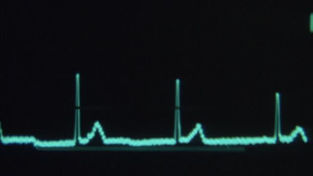Hand-held of a cardiac monitor showing heartbeats on a digital screen.
