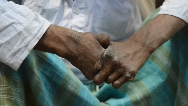 Hands deformed by leprosy