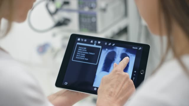 hands of female doctor explaining the lung scan on the tablet to her patient - respiratory system stock videos & royalty-free footage