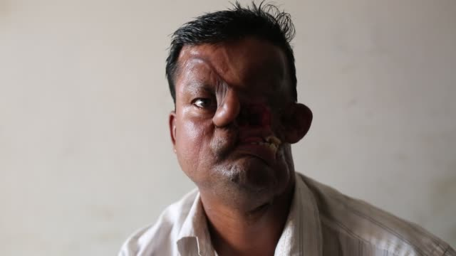 Hashmot Ali attacked by a tiger and lost her half face in 1995 admitted at Dhaka Medical for surgery in Dhaka Bangladesh on January 27 2016 Hashmot...