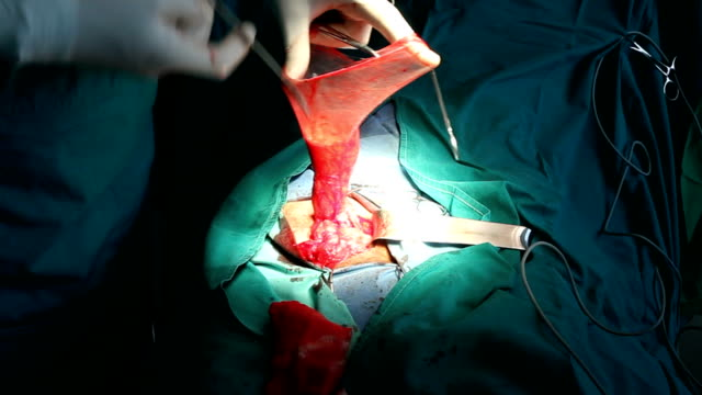 hd:inguinal hernia surgery (21) - hernia stock videos and b-roll footage