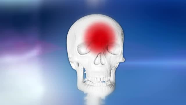 hd: headache animation - skull stock videos & royalty-free footage