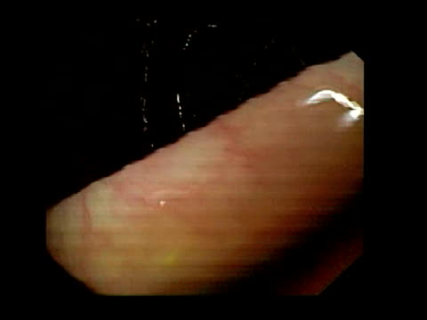 healthy human caecum, endoscope view. the caecum is the junction of the ileum, the last part of the small intestine, with the colon, the large intestine. the ileocaecal valve passes food and liquid into the colon.. - ileum stock videos & royalty-free footage