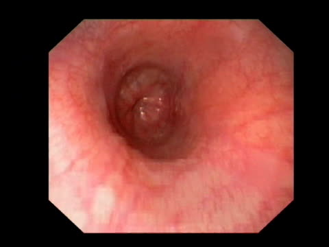 healthy human oesophagus, endoscope view. the oesophagus, or gullet, is the tube connecting the throat to the stomach. at its base is the cardia, where the cardiac sphincter controls the passage of food into the stomach.. - inside of stock videos & royalty-free footage
