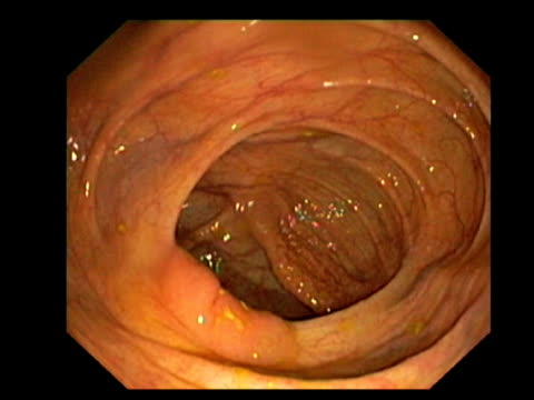 healthy large intestine. endoscopic view of a healthy large intestine (colon), showing the caecum, ileocaecal valve and the distal terminal ileum.. - ileum stock videos & royalty-free footage