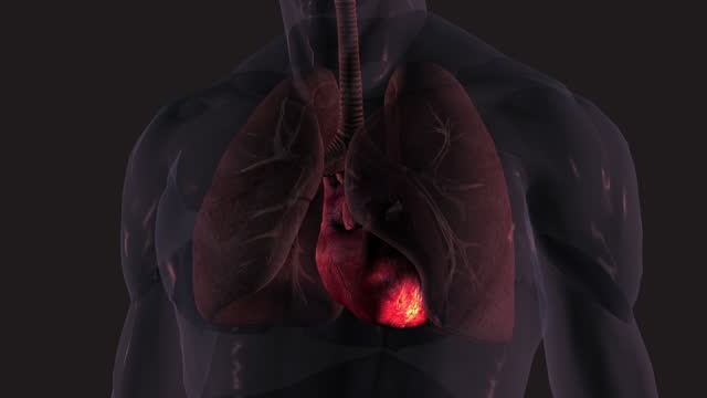 heart attack - inflammation stock videos & royalty-free footage
