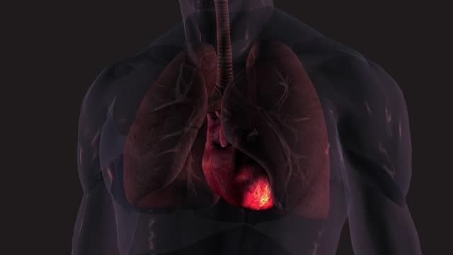stockvideo's en b-roll-footage met hartaanval - romp lichaamsdeel