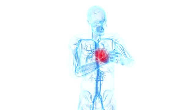 vídeos de stock, filmes e b-roll de heart attack - heart attack