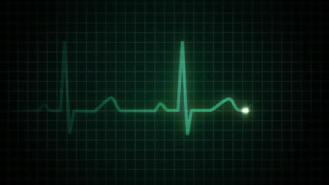 heart flatline hd (with audio) - death stock videos & royalty-free footage