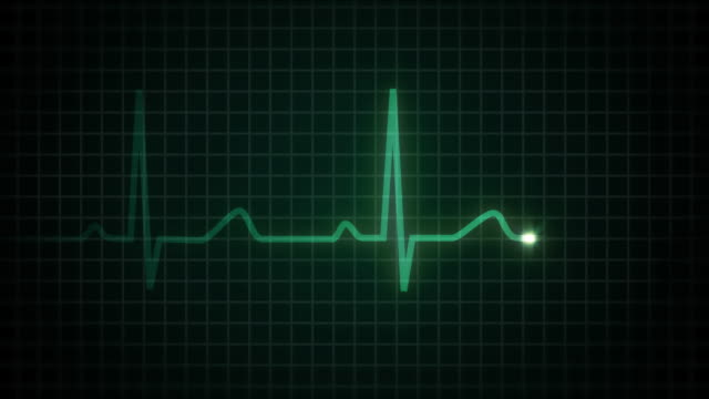 stockvideo's en b-roll-footage met heart flatline hd (with audio) - dood begrippen