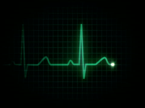 heart flatline ntsc - cancer astrology sign stock videos and b-roll footage