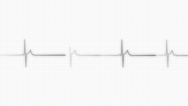 heart line | pulse trace - listening to heartbeat stock videos & royalty-free footage