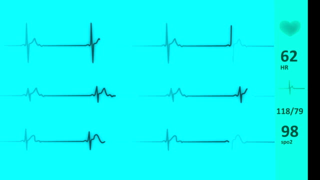 stockvideo's en b-roll-footage met ecg/ekg hart lijn | pulse trace - cardiovasculaire training