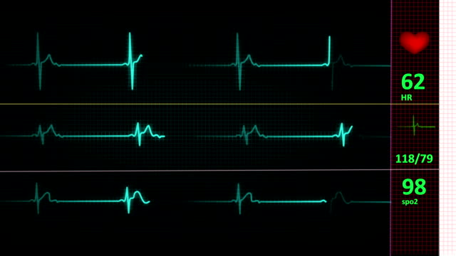 ecg/ekg heart line (loop) - listening to heartbeat stock videos & royalty-free footage
