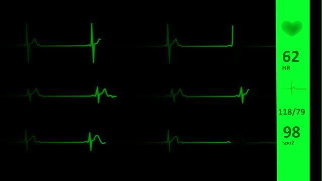 ecg/ekg heart line | vital signs - pulsating stock videos & royalty-free footage