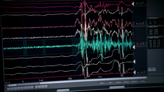 ms heart monitor depicting a barely-beating heart, a sudden surge of activity, then fading again to a flat line - pulse trace stock videos & royalty-free footage