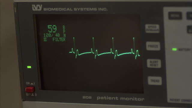 A heart monitor displays a heart beat suddenly flat lining.