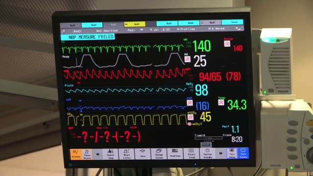 heart monitor in the operating room