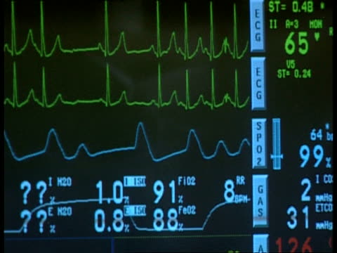 cu heart monitor showing uneven pressure - monitoring equipment stock videos & royalty-free footage