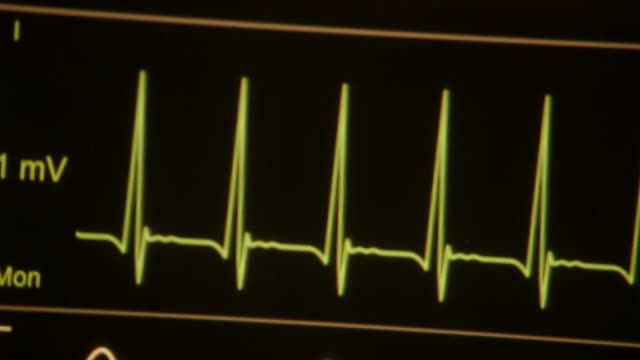 pan heart monitor showing vital signs - pulse trace stock videos & royalty-free footage