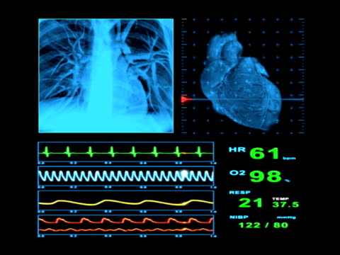 ekg heart rate monitor display - human heart stock videos and b-roll footage