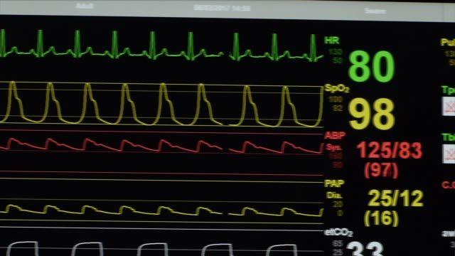 heart rate monitor in a hospital - monitoring equipment stock videos and b-roll footage