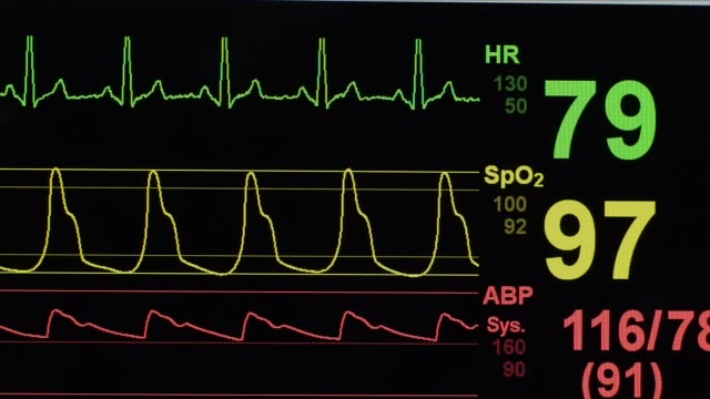 heart rate monitor in a hospital - cardiac conduction system stock videos and b-roll footage