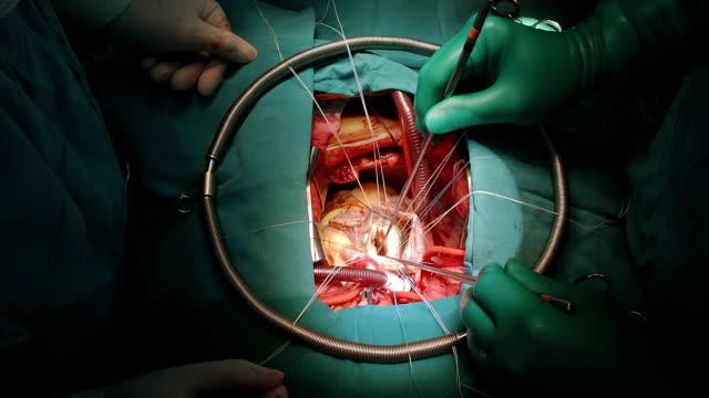 heart surgeon evaluate mitral valve pathology - atrioventricular valve stock videos & royalty-free footage