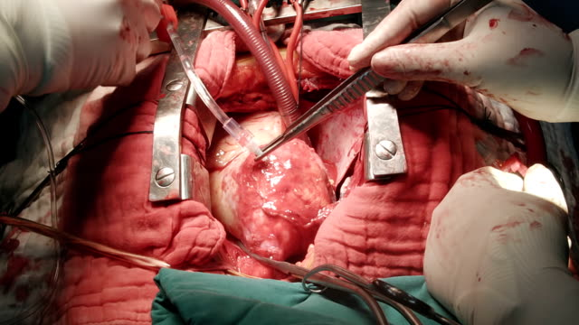 heart surgeon give cardioplegia with ice slush - hypothermia stock videos and b-roll footage