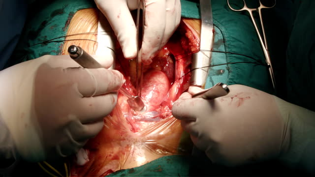 heart surgeon identified innominate vein - right auricle stock videos and b-roll footage