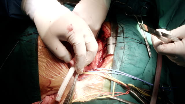 heart surgeon injected heparin to synthetic graft - left auricle stock videos and b-roll footage