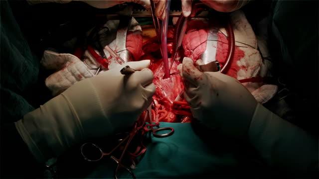 """vidéos et rushes de chirurgien cardiologue """"ouvrir à droite de l'atrium après arrêt cardiaque - veine humaine"""