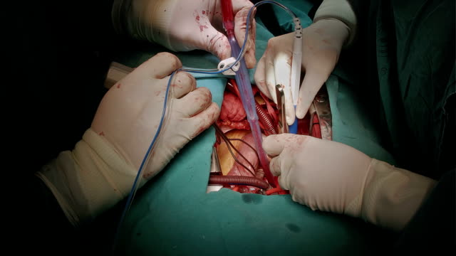 heart surgeon perform af surgery - atrium heart stock videos & royalty-free footage