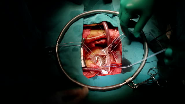 heart surgeon perform ring annuloplasty - atrioventricular valve stock videos & royalty-free footage
