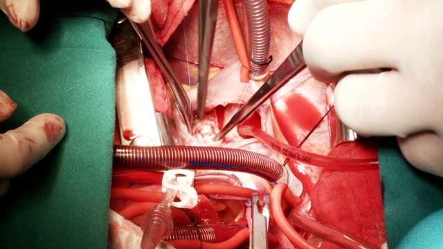 heart surgeon perform vsd closure - left auricle stock videos and b-roll footage