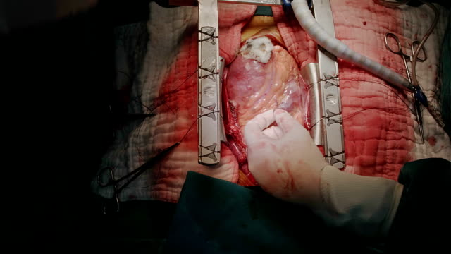 heart surgeon preparing left internal mammary artery - atrium heart stock videos & royalty-free footage