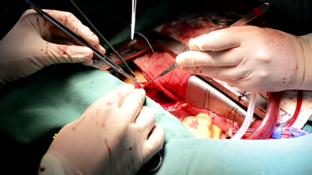 Heart surgeon suture Anastomosis