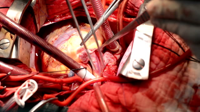 heart surgeon suture close right atrium - artery stock videos & royalty-free footage