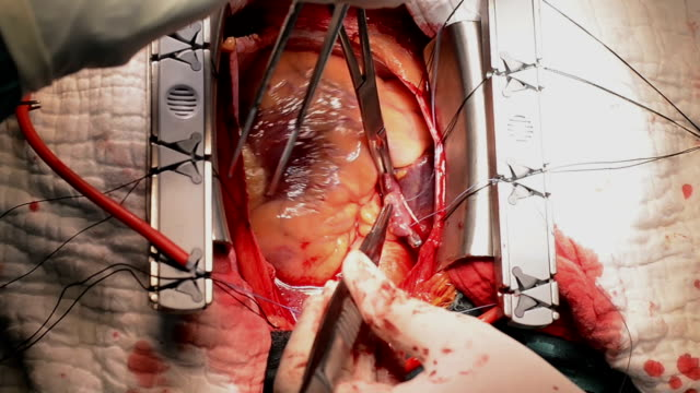 heart surgeon suture right atrium - atrium heart stock videos & royalty-free footage