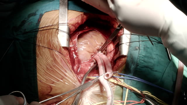 heart surgeon tide suture the last knot - aorta stock videos & royalty-free footage
