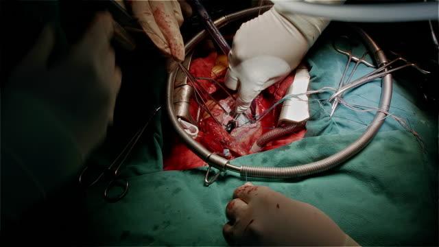 vidéos et rushes de chirurgien cardiologue cravate suture autour de valve cardiaque artificielle - veine humaine